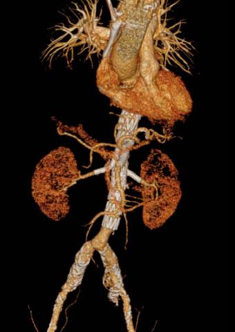 aorta-3