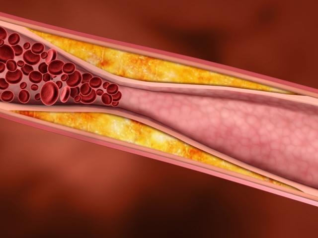 verengung-arterien-pavk_0[1]